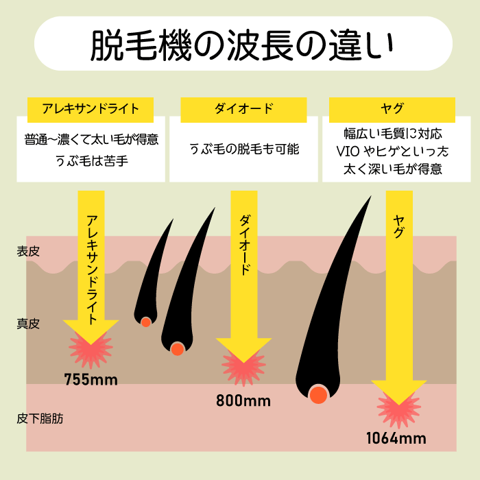レーザー脱毛機の波長の違い